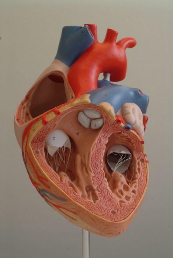 Herzwandverdickung