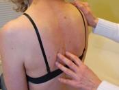 Multiple Myelom kann die Ursache von anhaltenen Rückenschmerzen sein