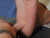 Der Arzt untersucht die Fraktur des Fersenbeins