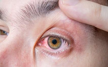 Rote Augen Symptom von einem Hornhautgeschwür sein.
