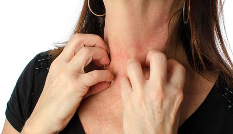 Zu häufiges kratzen schadet der Haut auf dauer.